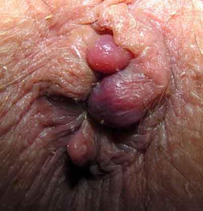 buiten toevallig anaal